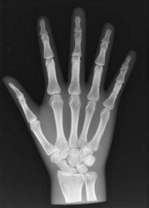 Una radiografia alla mano